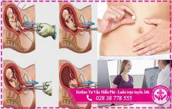 Nạo hút thai 4 tháng. Phương pháp và nguy hiểm cần biết