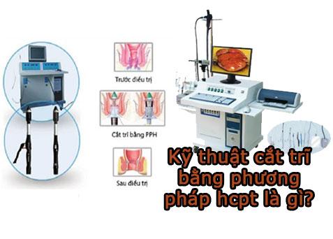 Kỹ thuật cắt trĩ bằng phương pháp hcpt là gì? Nên thực hiện ở đâu tại TPHCM?