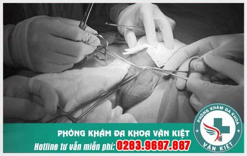 Phẫu thuật thắt ống dẫn tinh.